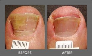 nail fungus treatment before and after image